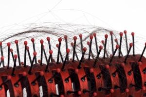 Closeup of Hairbrush with Hair Loss